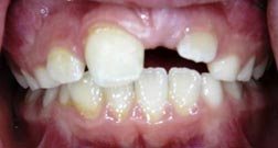 Impacted-permanent-tooth